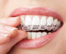 Ortonorm - Diş Beyazlatma