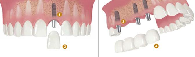 Ortonorm - Diş İmplantları (İmplantoloji)